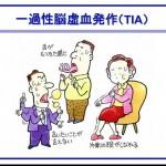 【脳梗塞予防】前兆の一過性脳虚血発作(TIA)を見逃すな!