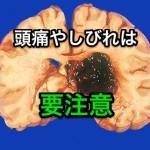 脳出血予防には前兆症状をチェック!頭痛やしびれは要注意?