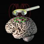 脳出血後遺症の麻痺はTMSで治る?リハビリとの併用効果は?