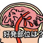 脳出血の好発部位とその症状は?どんな後遺症が残る?