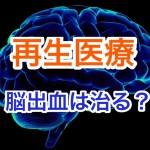 脳出血後遺症の再生医療はどうなる?麻痺を回復させるには?