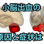 小脳出血の原因と症状|頭痛・回転性めまい・嘔吐は要注意!