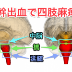 【脳幹出血の治療と予後】後遺症に麻痺はある?リハビリで回復する?