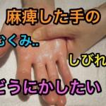 脳出血後遺症|麻痺した手のむくみやしびれはリハビリで治る?