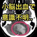 【小脳出血で意識不明】生存率は?手術で意識は回復する?