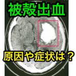 被殻出血の原因・症状・予後・再発リスクは?どんな後遺症が残る?