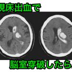視床出血で脳室穿破したら手術適応?予後は?水頭症の合併は?