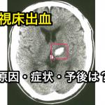 視床出血の原因・症状・予後は?どんな後遺症が残る?