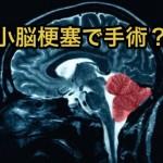 小脳梗塞の症状を見逃すな!予後は?手術で意識は回復する?